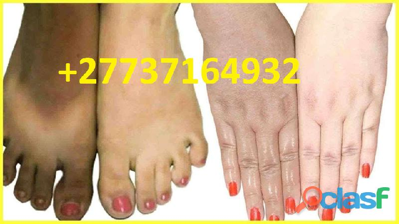 *beauty products* +27737164392 skin lightening cream pills for sale in boksburg welkom newcastle